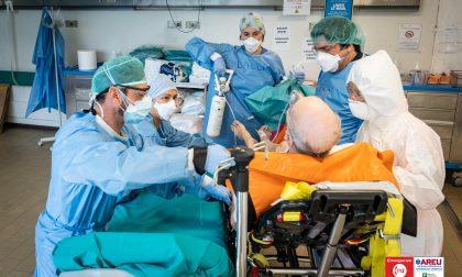 Il 37% dei pazienti Covid ha avuto conseguenze neurologiche