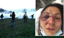 No Tav ferita negli scontri: gli attivisti contro i giornali e la versione ufficiale